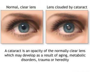 cataract-picture-c-300x240